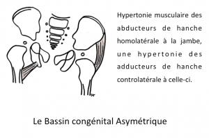 le-bassin-congenital-asymetrique